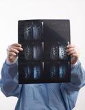 Arts die Röntgenstraal MRI bekijkt Stock Afbeeldingen