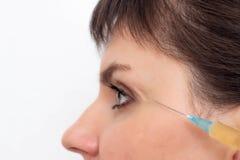 Artsencosmetologist spuit plasma in het litteken op het te helen gezicht van het meisje en resorb het litteken, close-up, exempla stock foto's