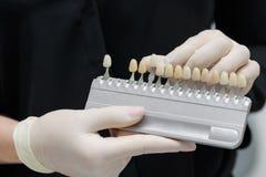 Artsenorthodontist houdt in zijn handtests voor de geduldige tanden van ` s vóór bleken Royalty-vrije Stock Foto's