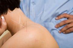 As agulhas da acupunctura suportam sobre de uma mulher nova Fotografia de Stock