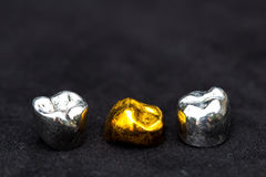 As coroas do dente do ouro dental e do metal no preto escuro surgem Foto de Stock Royalty Free