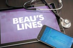 As linhas do Beau (doença cutâneo) conceito médico do diagnóstico em Ta Fotos de Stock