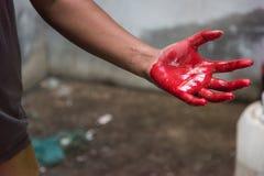 As mãos equipam coberto no vermelho muito ensanguentado após o acidente Imagens de Stock