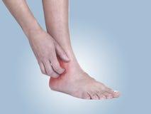 As mulheres riscam o tornozelo itchy com mão. Imagem de Stock