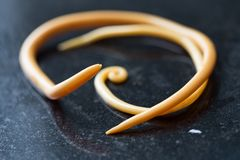 Ascariasis is a disease caused by the parasitic roundworm Ascaris lumbricoides for education. Ascariasis is a disease caused by the parasitic roundworm Ascaris stock image
