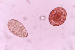 Ascaris. Mix egg parasite in stool under light microscopy Stock Photos
