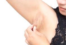 Ascella del nero di problema delle donne su fondo bianco per cura di pelle e Fotografia Stock