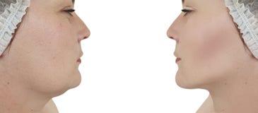 Ascensore del doppio mento della donna prima e dopo le procedure fotografie stock libere da diritti