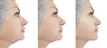 Ascensore del mento della donna prima e dopo le procedure immagini stock libere da diritti