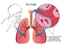 Asciughi la tosse Immagine Stock