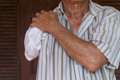 Asia elderly man with one arm and arm prosthetic Royalty Free Stock Images