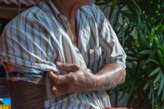 Asia elderly man with one arm and arm prosthetic Stock Photo