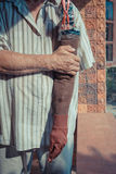 Asia elderly man with one arm and arm prosthetic Royalty Free Stock Photos