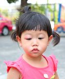 Asian baby girl eye swell. Allergy after mosquitoes biting at eye small girl royalty free stock photos