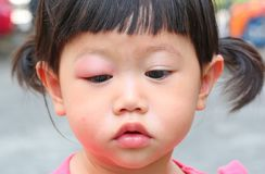 Asian baby girl eye swell. Allergy after mosquitoes biting at eye small girl stock photo