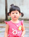 Asian baby girl eye swell. Allergy after mosquitoes biting at eye small girl stock photos
