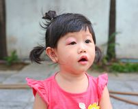 Asian baby girl eye swell. Allergy after mosquitoes biting at eye small girl stock image