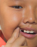 Asian boy just losing his milk tooth Stock Photography