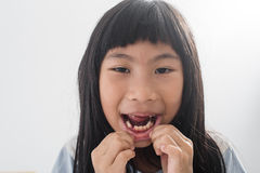 Asian child has lost the baby tooth Stock Image
