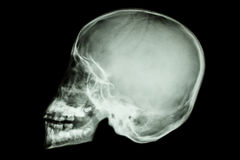 Asian child's skull (Thai people) Royalty Free Stock Photography