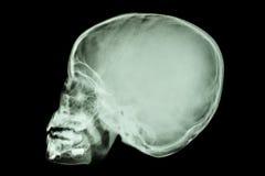 Asian child's skull (Thai people) Stock Photo
