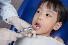 Asian Chinese little girl lying down for tooth extraction Royalty Free Stock Photos