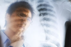 Asian doctor examining xray negative Royalty Free Stock Image
