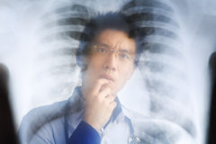 Asian doctor examining xray negative Royalty Free Stock Images