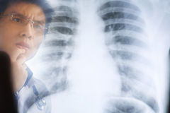 Asian doctor examining xray negative Royalty Free Stock Photography