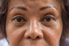 Asian elder women show her eyes and eyebrow tattoo. Asian elder woman 60s with black hair and wrinkled on face show her eyes and eyebrow tattoo before cornea royalty free stock images