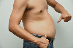 Asian fat man has cholesterol . He shows excess fat of the tummy Royalty Free Stock Photos