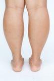 Asian fat women's feet. Royalty Free Stock Photography