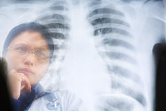 Asian female doctor busy working on x-ray result Royalty Free Stock Photos