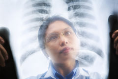 Asian female doctor busy working on x-ray result Stock Photo