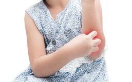 Asian girl scratch the itch with hand her arm because of mosquit Stock Photos