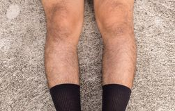 Asian man bandy-legged shape of the legs,Physiological bow leg stock images