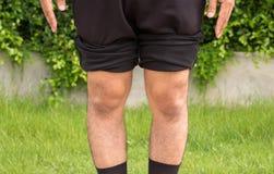 Asian man bandy-legged shape of the physiological bow leg. S royalty free stock photo