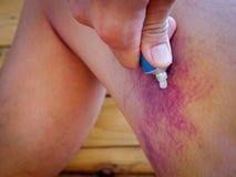 Asian man bruised leg Royalty Free Stock Photo