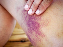 Asian man bruised Stock Images