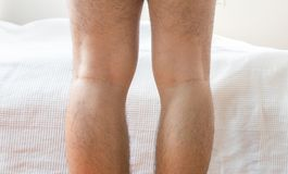 Asian man leg bandy-legged shape of the legs royalty free stock image