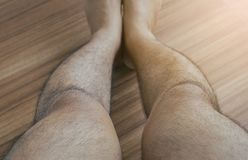 Asian man leg bandy-legged shape of the legs,Selective focus. Asian man legs bandy-legged shape of the legs,Selective focus royalty free stock images