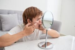 Asian man looking at mirror and popping a pimple.  stock image