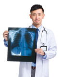 Asian medical doctor holding x-ray Royalty Free Stock Photo