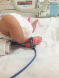 Asian new born baby of feet under ultraviolet lamp in the incubator. stock photos