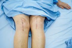 Asian senior or elderly old lady woman patient show her scars surgical total knee joint replacement Suture wound surgery arthropla. Sty on bed in nursing stock images