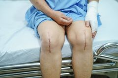 Asian senior lady old woman patient show her scars surgical total knee joint replacement. Asian senior or elderly old lady woman patient show her scars surgical royalty free stock photography