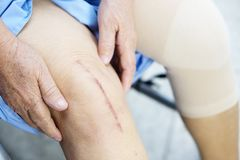 Asian senior lady old woman patient show her scars surgical knee joint replacement. Asian senior lady old woman patient show her scars surgical total knee joint royalty free stock photo