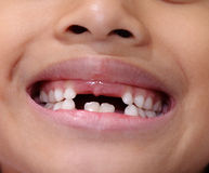 Asian young girl with missing front tooth. Stock Images