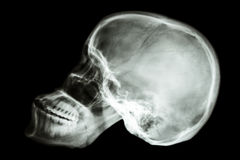 Asians skull (Thai people) Royalty Free Stock Photography