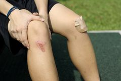 Asiatique avec les genoux blessés Images stock